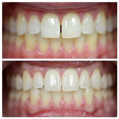 Invisalign Before After West Village Patient